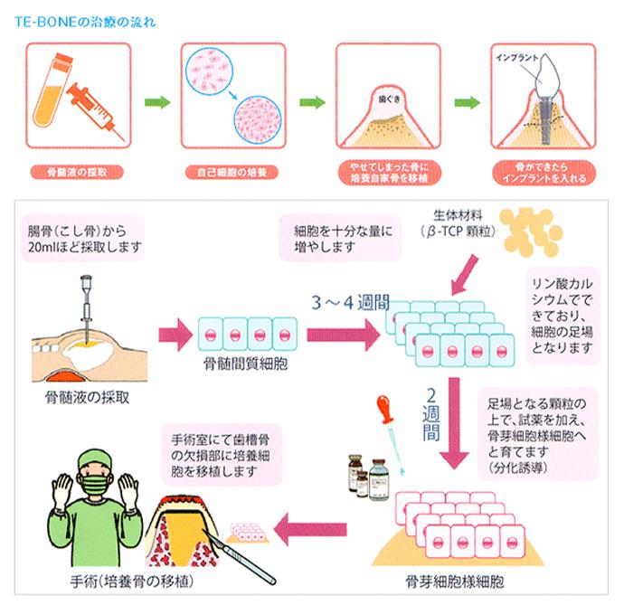 TE-BONEの治療の流れの図