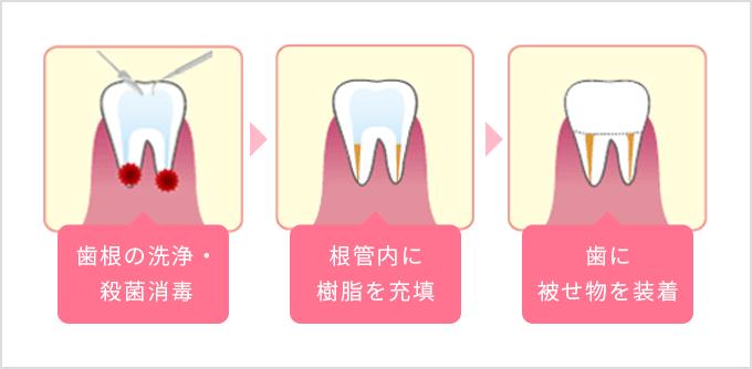 歯根の洗浄・殺菌消毒 根管内に樹脂を充填 歯に被せ物を装着