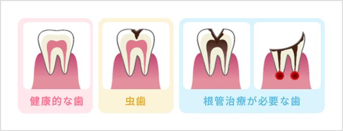 健康的な歯 虫歯 根管治療が必要な歯