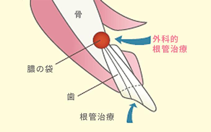 外科的根管治療骨膿の袋歯根管治療