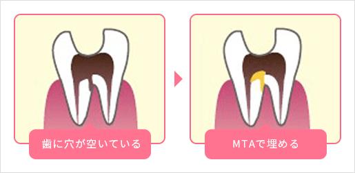 歯に穴が開いている MTAで埋める